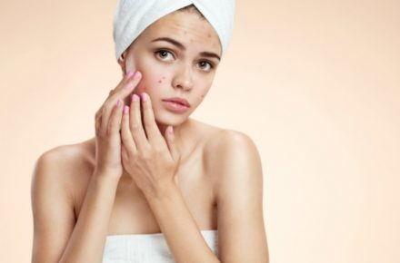Acne Treatment Alternatives – An Extensive Review
