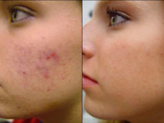 how to get rid of acne pimples permanently