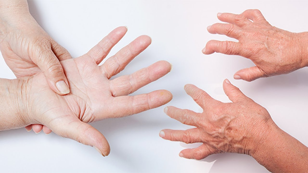 Natural Remedies to Get Rid of Rheumatoid Arthritis