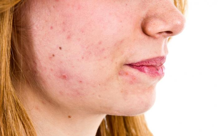 Tips for Finding the Best Acne Treatments
